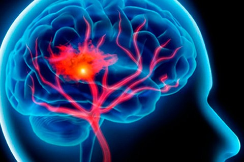 Ataque cerebral – Aprendé a reconocerlo